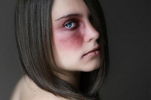 Aggredisce la convivente colpendola al naso e alle labbra: 41enne finisce ai domiciliari